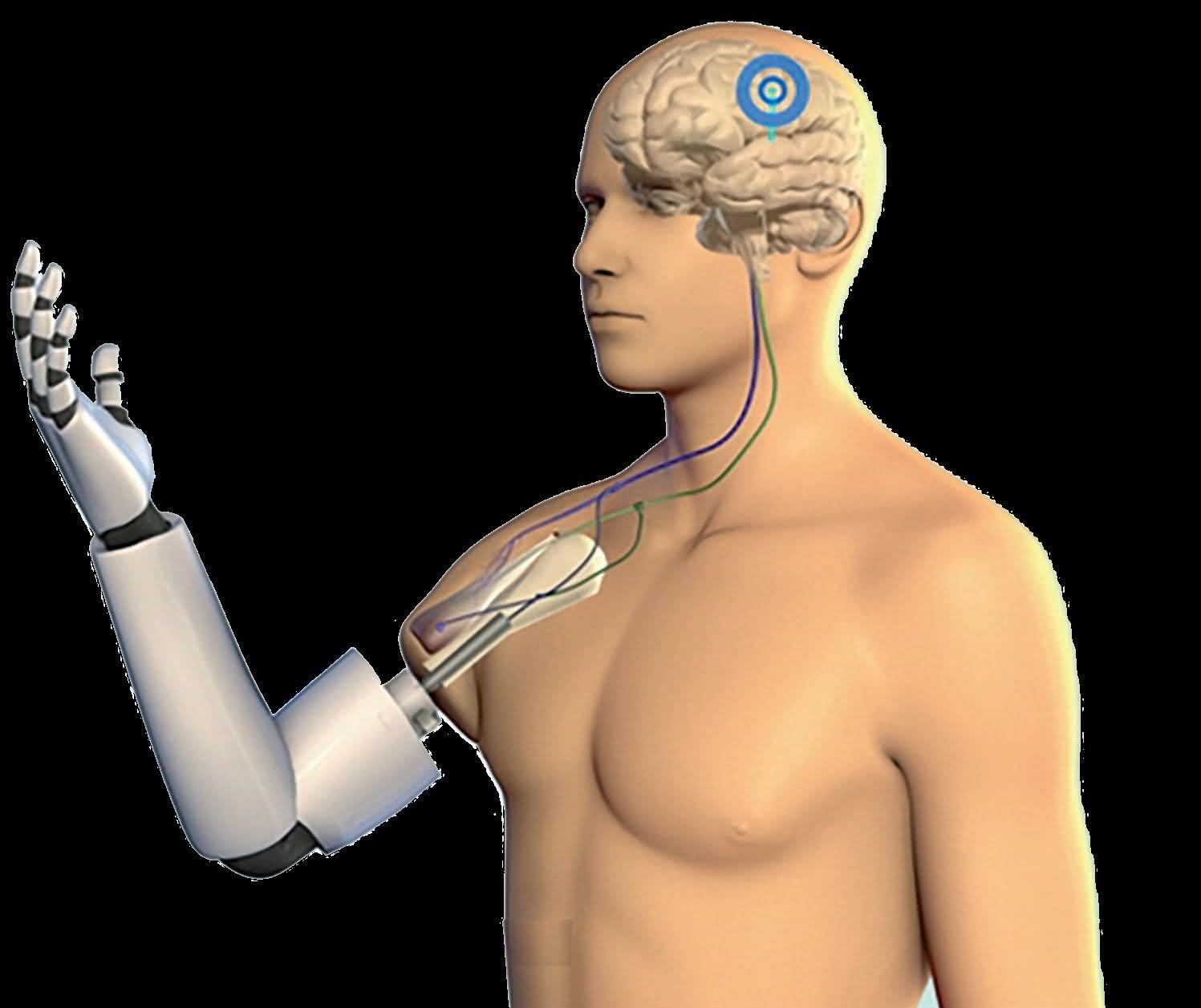 Wspaniały Jak to działa - proteza sterowana bezpośrednio z mózgu WF45